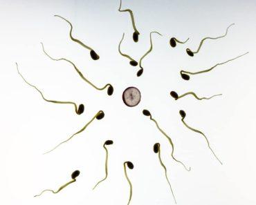 Spermienqualität